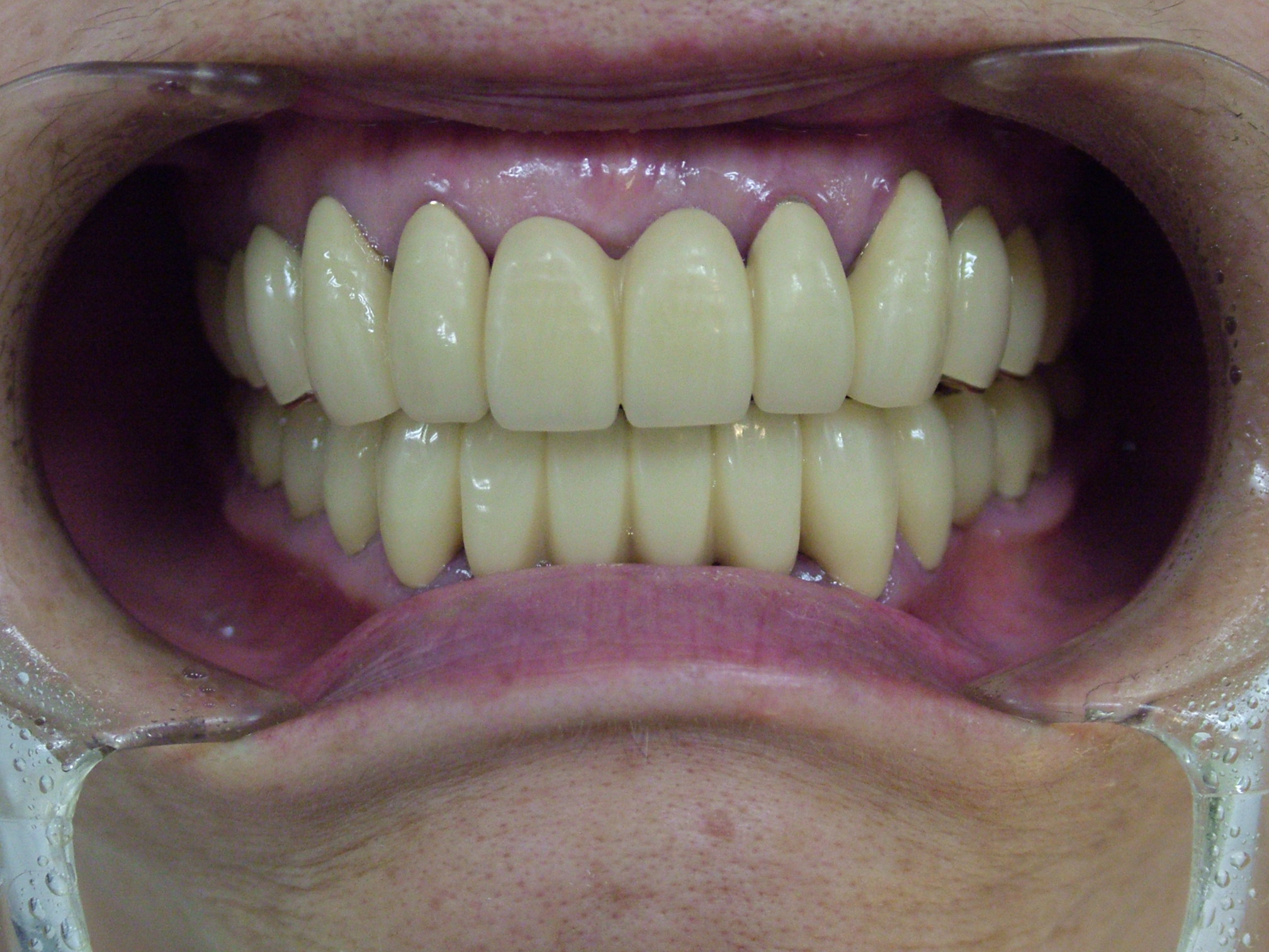 当院予防歯科に20年以上通われているかたの残存歯数を調べてみました